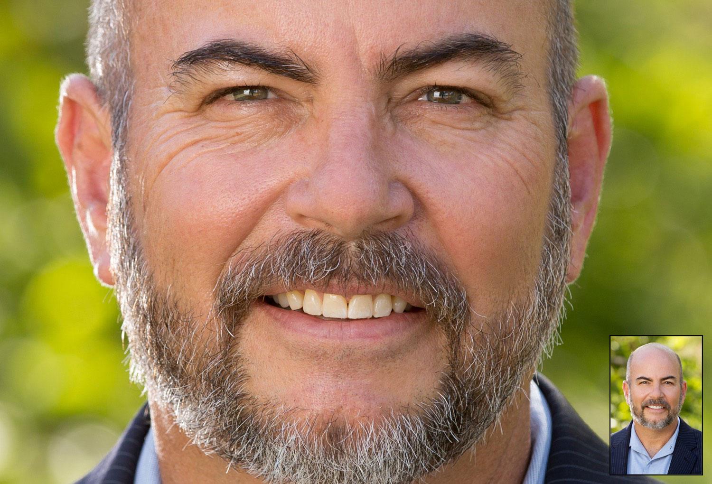 Facial Photo Retouching Man Outdoors before