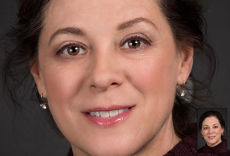 Facial Photo Retouching Eye Fix Woman after