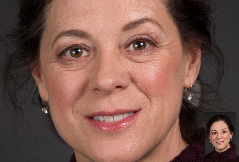 Facial Photo Retouching Eye Fix Woman before